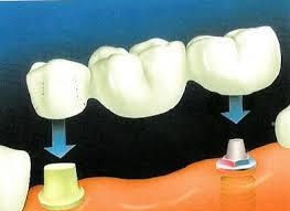 dental-implant-expert
