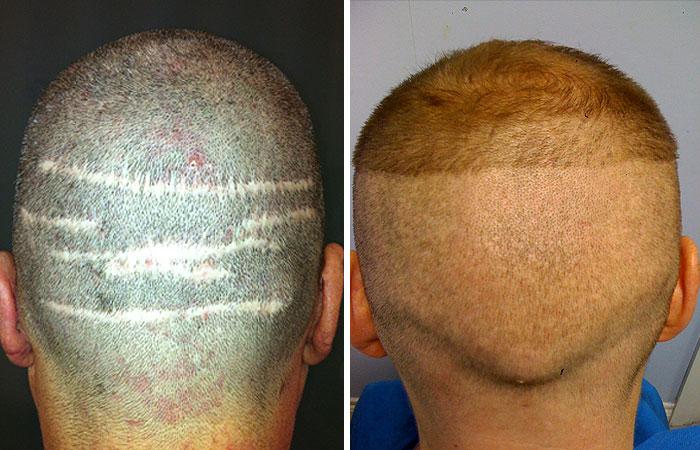 transplanted-hair